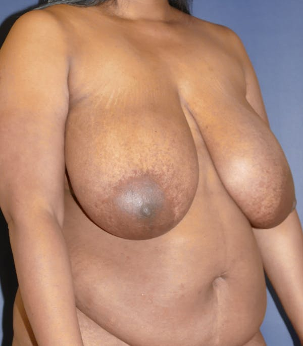 Breast Reduction Gallery - Patient 57939162 - Image 3