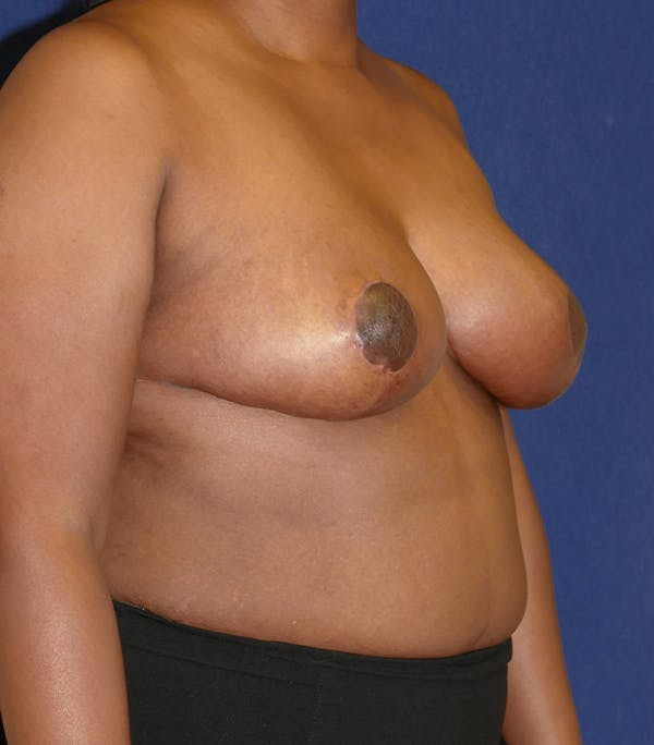 Breast Reduction Gallery - Patient 57939162 - Image 4