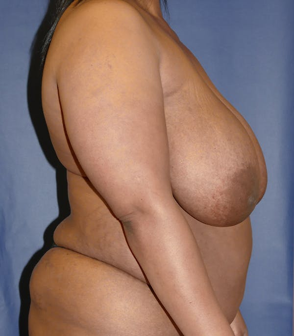 Breast Reduction Gallery - Patient 57939162 - Image 5