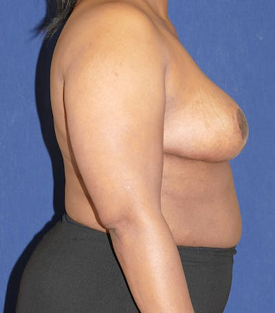 Breast Reduction Gallery - Patient 57939162 - Image 6