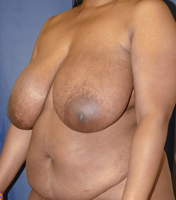 Breast Reduction Gallery - Patient 57939162 - Image 7