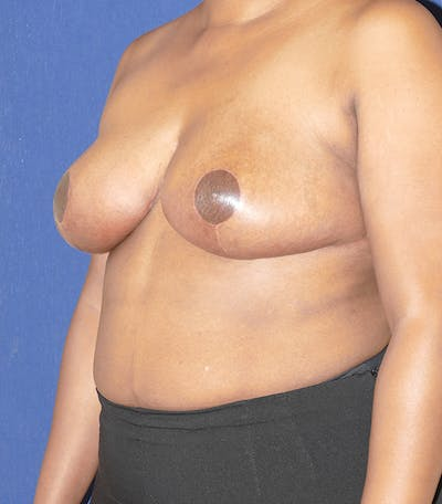Breast Reduction Gallery - Patient 57939162 - Image 8