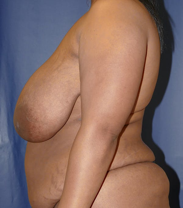 Breast Reduction Gallery - Patient 57939162 - Image 9