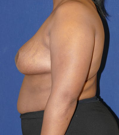 Breast Reduction Gallery - Patient 57939162 - Image 10