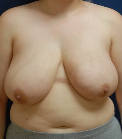 Breast Reduction Gallery - Patient 57939163 - Image 1