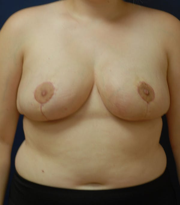 Breast Reduction Gallery - Patient 57939163 - Image 2