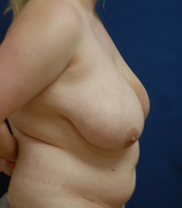 Breast Reduction Gallery - Patient 57939163 - Image 3