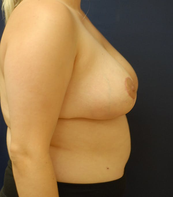 Breast Reduction Gallery - Patient 57939163 - Image 4