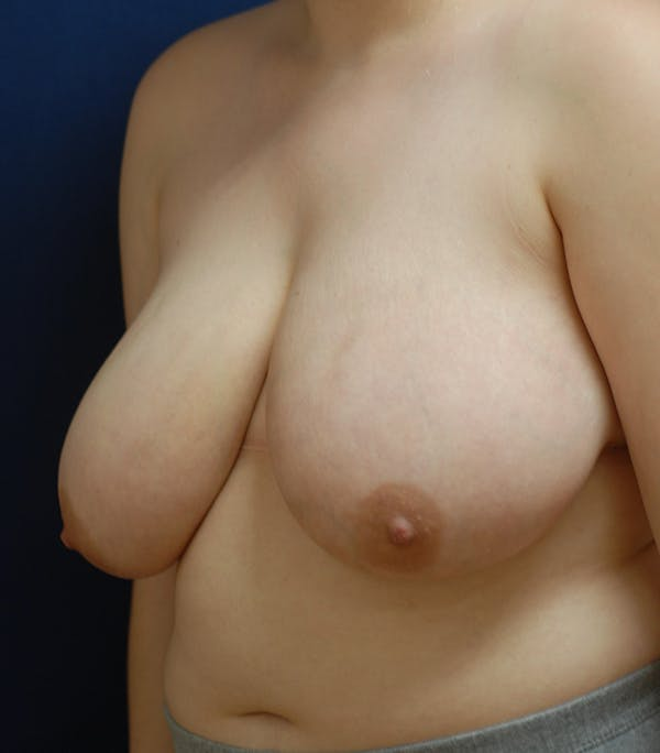 Breast Reduction Gallery - Patient 57939163 - Image 5