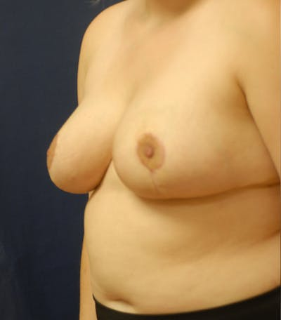 Breast Reduction Gallery - Patient 57939163 - Image 6