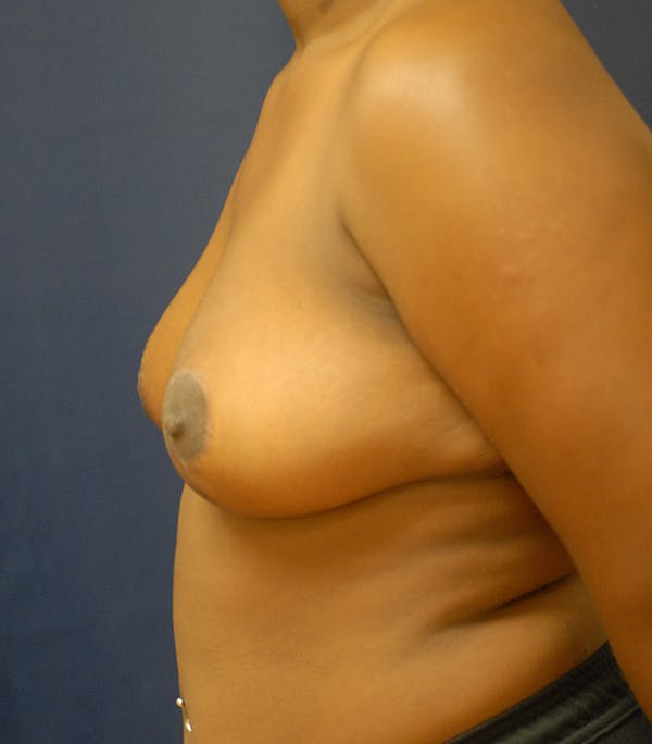 Breast Reduction Gallery - Patient 57939164 - Image 6