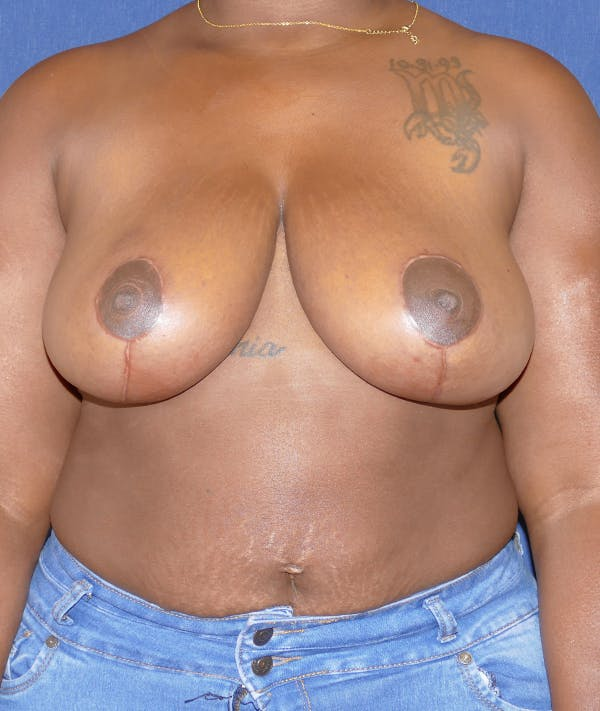 Breast Reduction Gallery - Patient 43640034 - Image 2