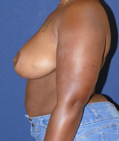 Breast Reduction Gallery - Patient 43640034 - Image 4