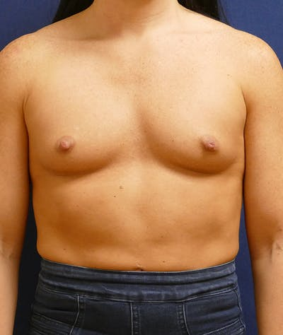 Breast Augmentation Gallery - Patient 57939209 - Image 1