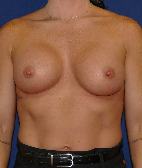 Breast Augmentation Gallery - Patient 57939209 - Image 2