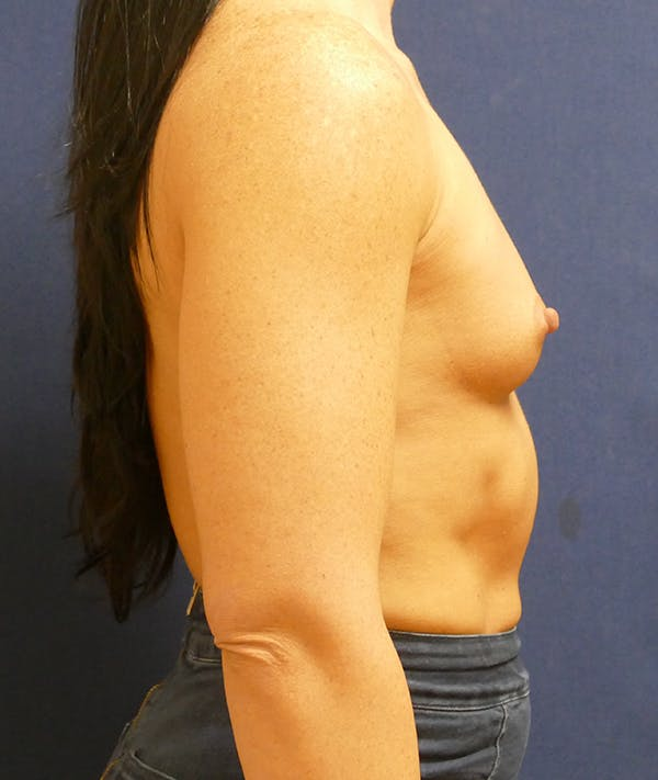Breast Augmentation Gallery - Patient 57939209 - Image 3