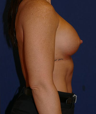 Breast Augmentation Gallery - Patient 57939209 - Image 4