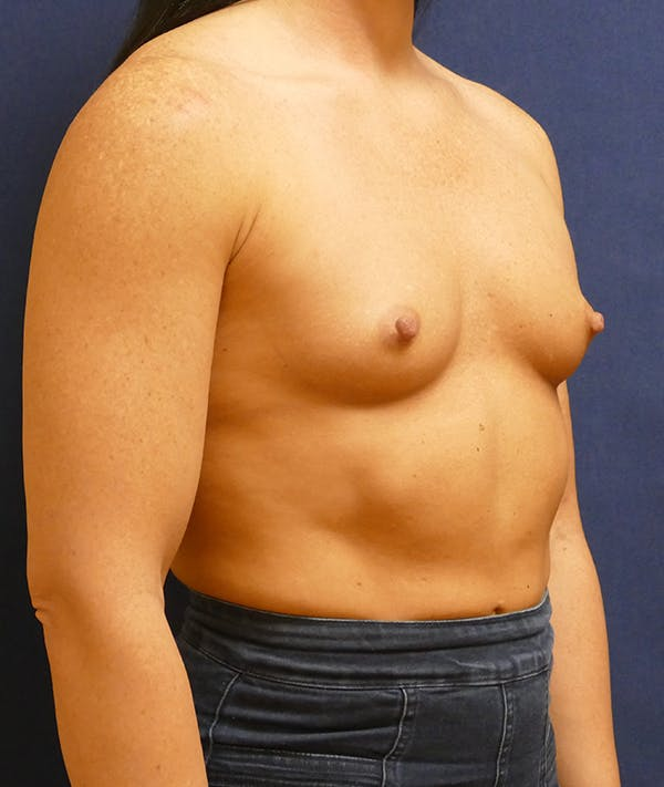 Breast Augmentation Gallery - Patient 57939209 - Image 5