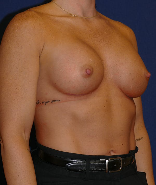 Breast Augmentation Gallery - Patient 57939209 - Image 6