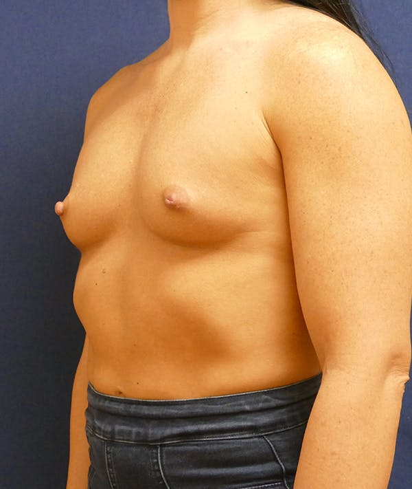 Breast Augmentation Gallery - Patient 57939209 - Image 7