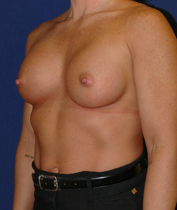 Breast Augmentation Gallery - Patient 57939209 - Image 8