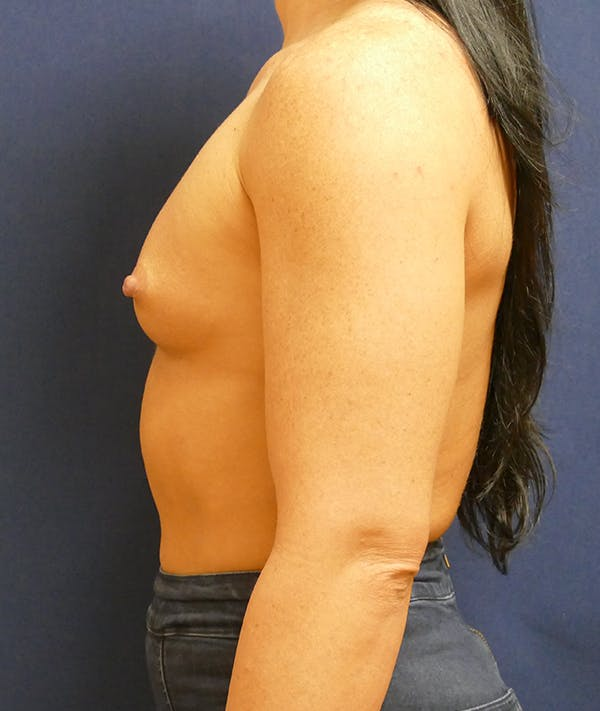 Breast Augmentation Gallery - Patient 57939209 - Image 9