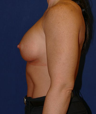 Breast Augmentation Gallery - Patient 57939209 - Image 10
