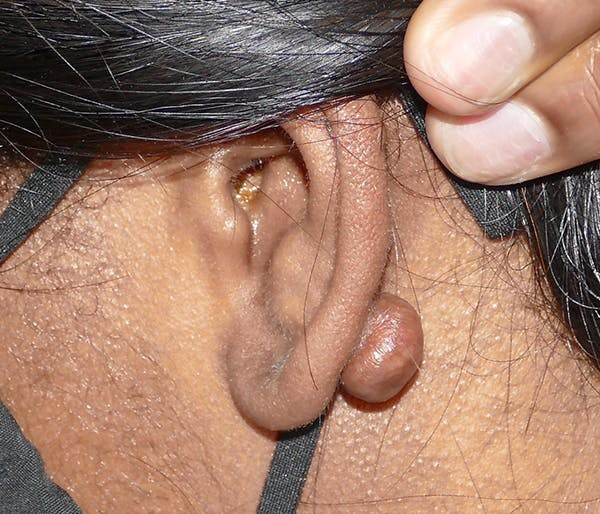 Miscellaneous Gallery - Patient 57939235 - Image 3
