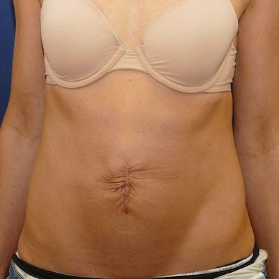 Tummy Tuck (Abdominoplasty) Gallery - Patient 57939254 - Image 1