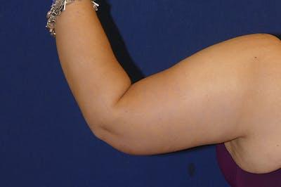 Arm Lift (Brachioplasty) Gallery - Patient 57939261 - Image 2