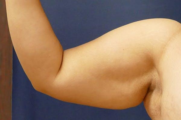 Arm Lift (Brachioplasty) Gallery - Patient 57939261 - Image 5