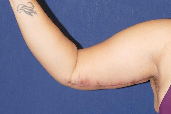 Arm Lift (Brachioplasty) Gallery - Patient 57939261 - Image 6