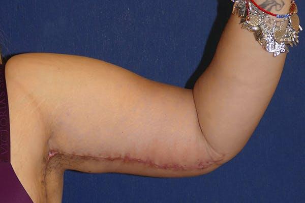 Arm Lift (Brachioplasty) Gallery - Patient 57939261 - Image 8