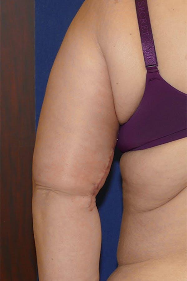 Arm Lift (Brachioplasty) Gallery - Patient 57939261 - Image 9
