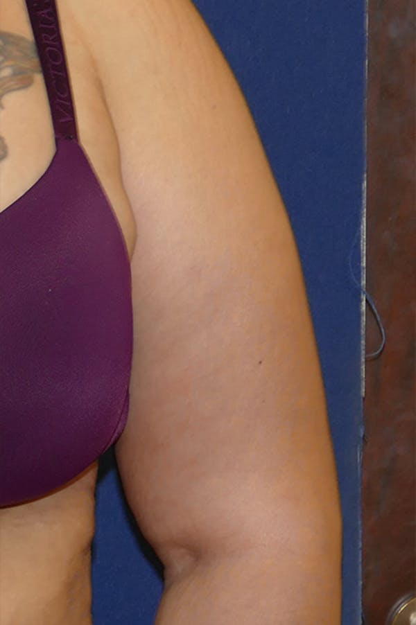 Arm Lift (Brachioplasty) Gallery - Patient 57939261 - Image 10