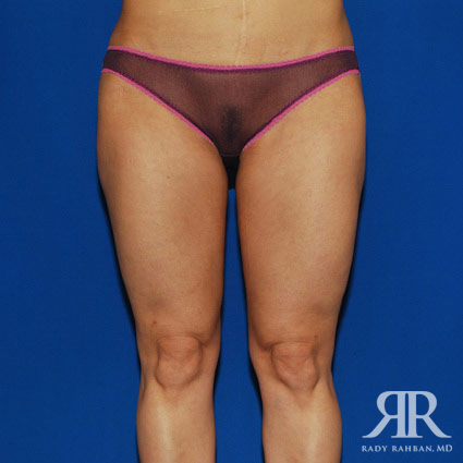 Liposuction Before & After Photo 01