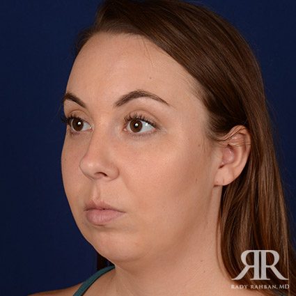 Chin Augmentation