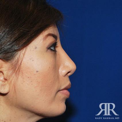 Chin Augmentation