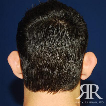 Ear Pinning Surgery
