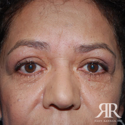 Eyelid surgey results on patient