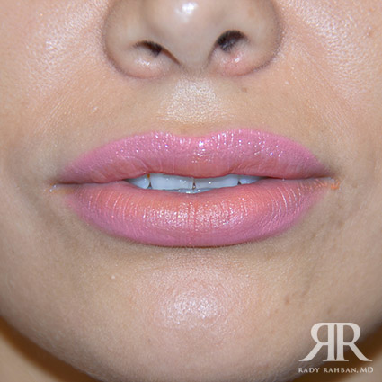 Lip reduction on patient