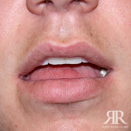 Lip Reduction / Lip Correction