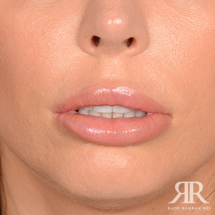 Lip Reduction / Lip Correction