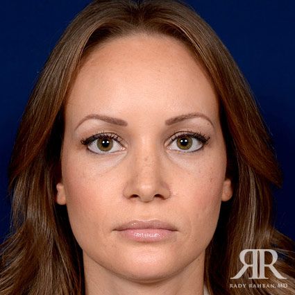 woman that received rhinoplasty