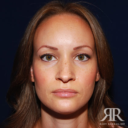 Before photo of rhinoplasty
