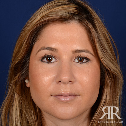 Beverly Hills Rhinoplasty Recovery Guide