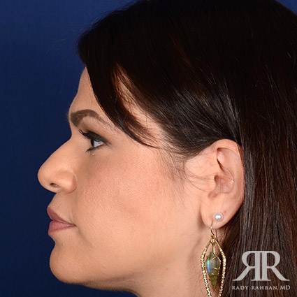 Female Rhinoplasty