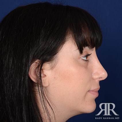 Female Rhinoplasty
