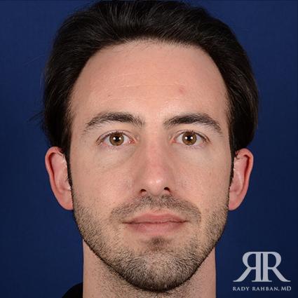 man that received rhinoplasty