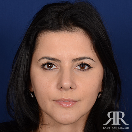 Woman that received revision rhinoplasty
